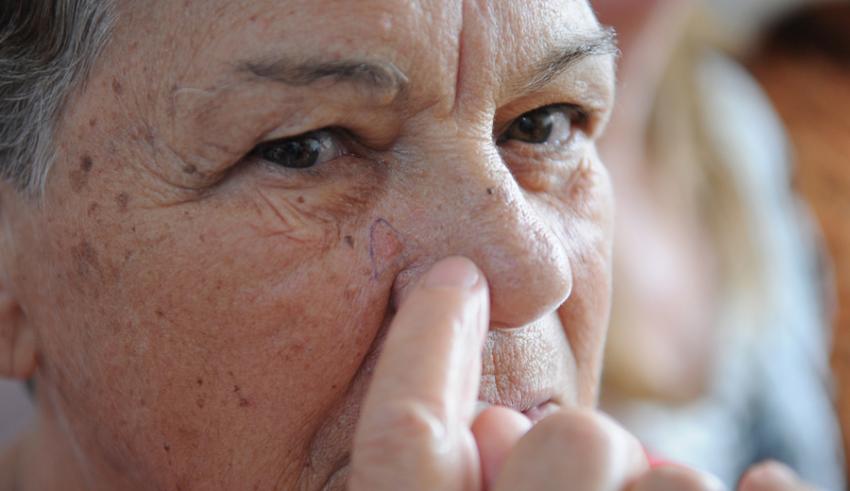 Hospital Universitário realizará mutirão de combate ao cancêr de pele