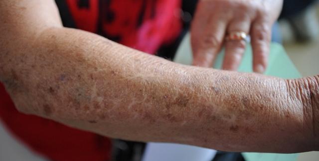 HUB realiza mutirão para prevenir câncer de pele