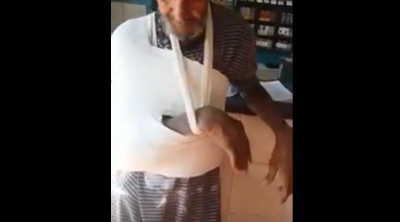Homem tem braço e tronco engessados por cima da roupa. Veja vídeo