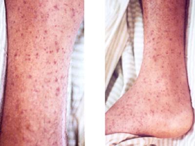 Manchas vermelhas da febre maculosa (Instituto Oswaldo Cruz/Divulgação)