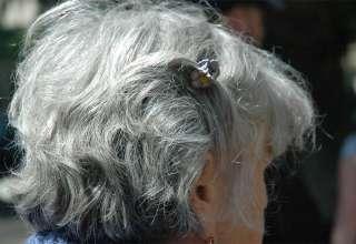 Embranquecimento dos pelos está ligado a stress