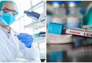 coronavírus covid pandemia