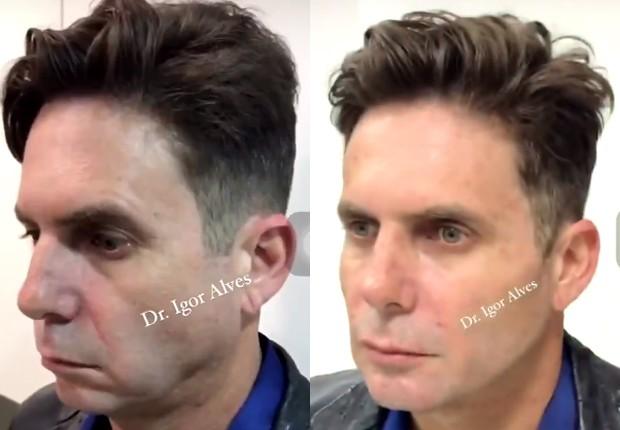 Hudson Antes e Depois Harmonização Facial