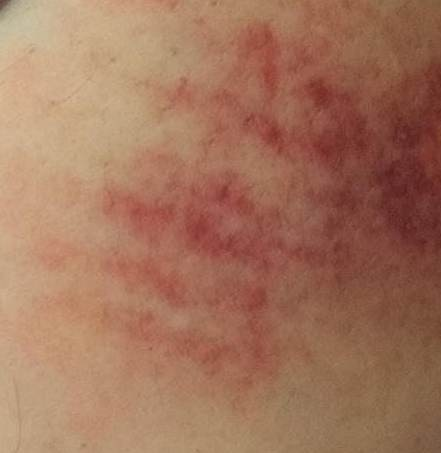 mordida braço
